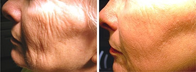 Before (left) and after (right) fractional skin resurfacing in Albuquerque, NM.