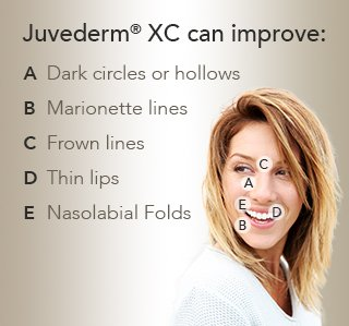 Address multiple concerns with Juvederm in Albuquerque.