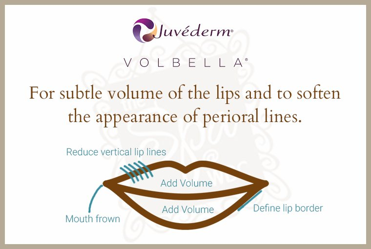 Volbella at Albuquerque's Western Dermatology Consultants is a versatile filler with several applications in and around the lips